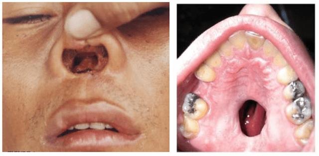 efectos drogas dientes