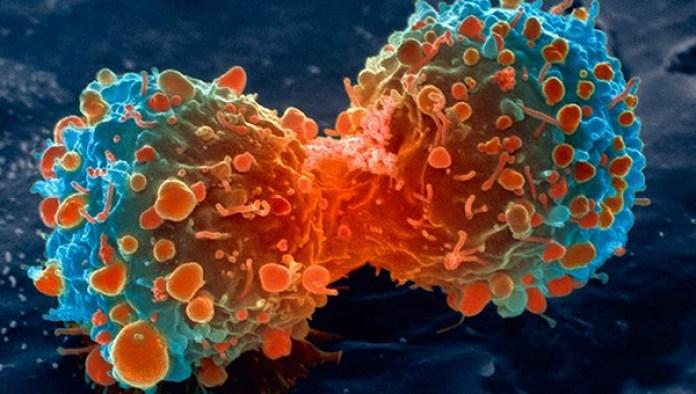 metástasis del cancer