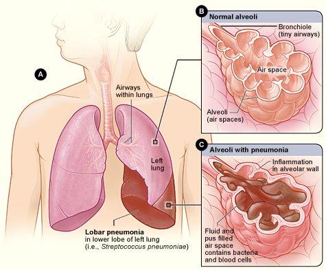 Azithromycin Overprescribed For Childhood Pneumonia