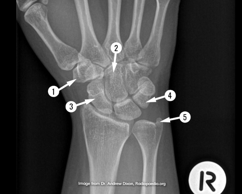 Wrist Anatomy Xray - Anatomy Drawing Diagram