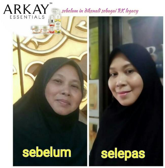 testimoni-pengguna-arkay-skincare-1