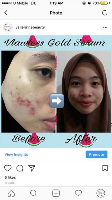 testimoni-pelanggan-vallerine-premium-organic-skincare-4.