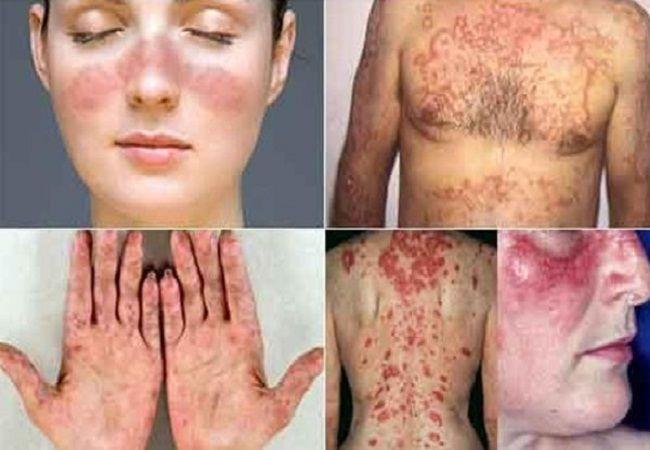 masalah penyakit kulit kronik
