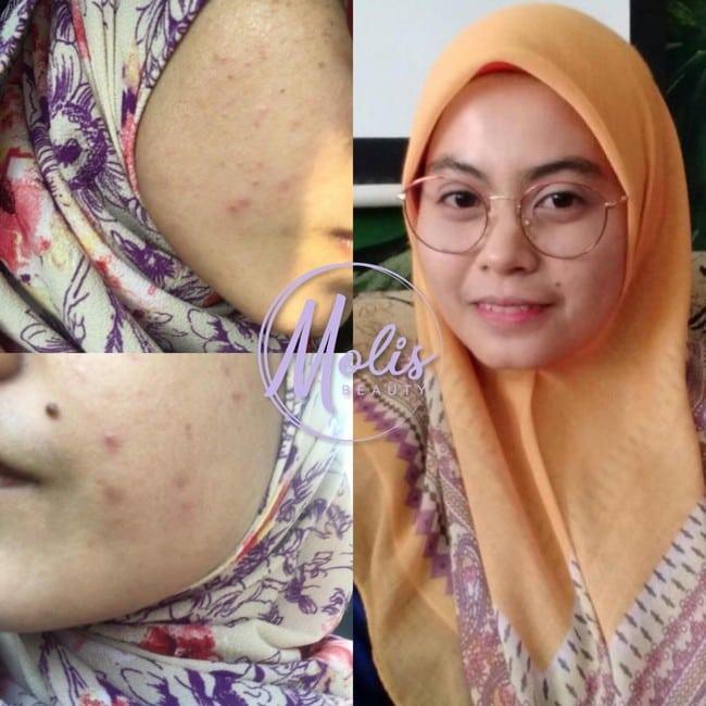 testimoni molis beauty serum