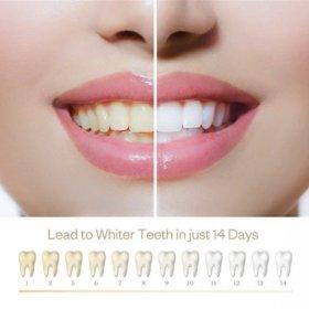 Gel na bělení zubů