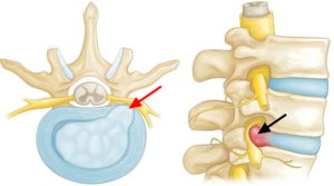 How to heal a herniated disc quickly with these guidelines ...