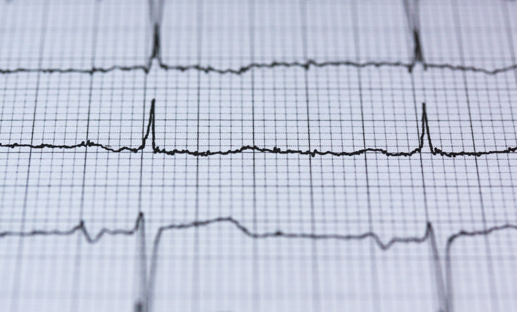 Srdce, ischemická choroba a fyzioterapia po infarkte myokardu