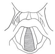 Vocal Strain.jpg