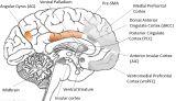 brain sagittal view - kopie