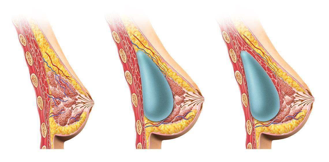 Жировой некроз молочной железы. Жировой некроз молочной железы: причины, симптомы, лечение Некроз опухоли молочной железы