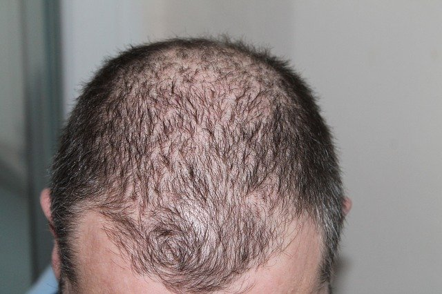 how to stop hair loss for men