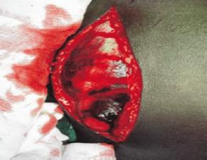 necrotic tissue