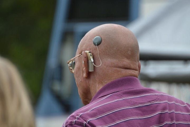 You are currently viewing Pros and Cons of Cochlear Implants