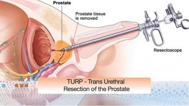 intervento prostata