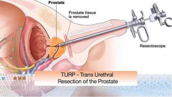 Sesso dopo una prostatactomia robotico