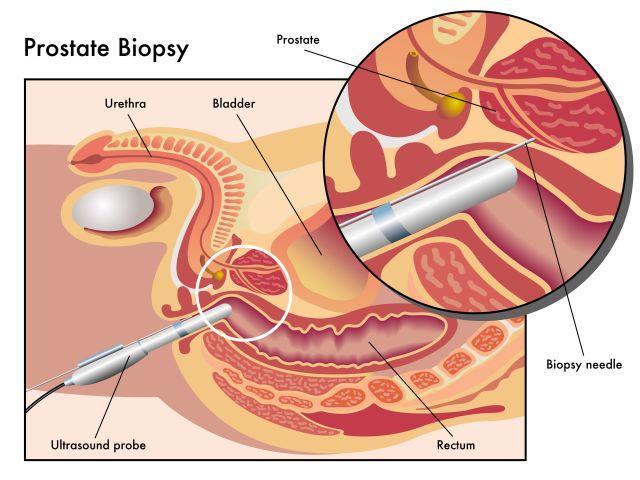 Prostatakrebs Untersuchung PSA-Test Biopsie