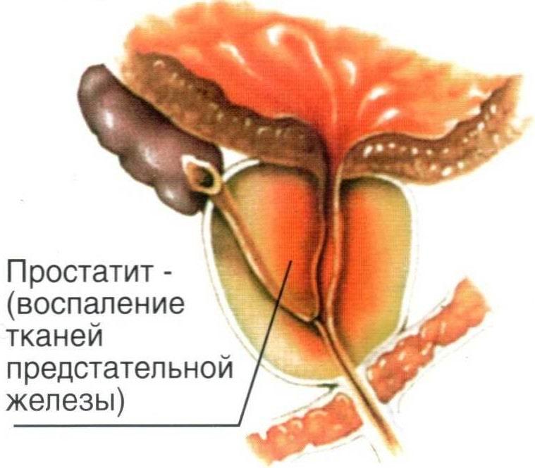 A prostatitis pompei kezelése Okozza a prosztatitis súlyosbodását