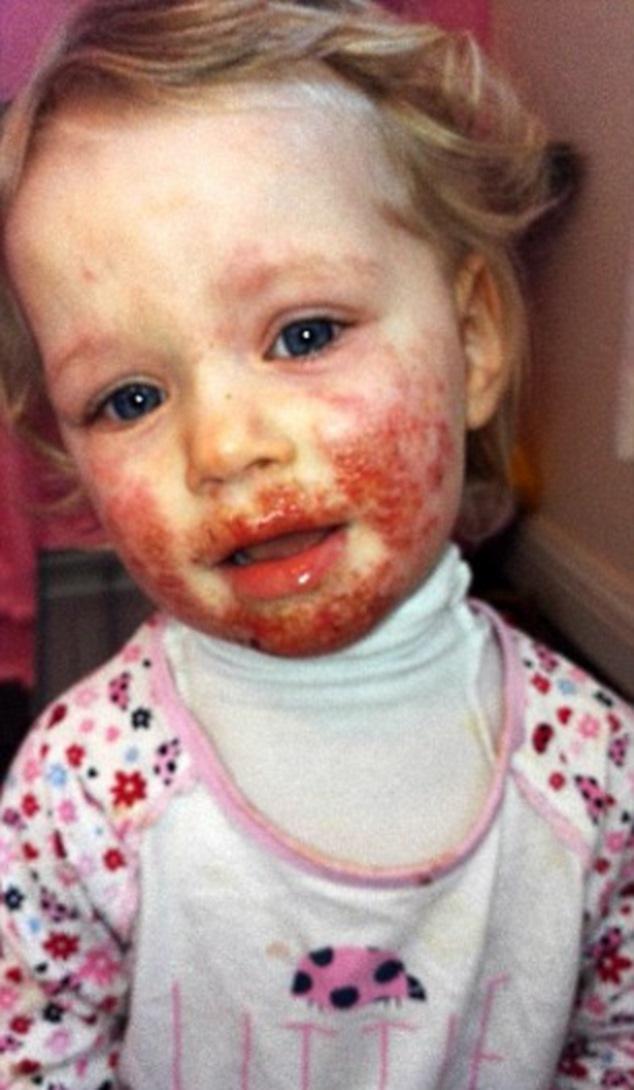 Эта девочка тяжело заболела из-за того, что делают 99 % родителей...