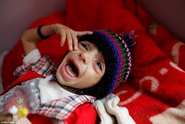 Это фото 6-летнего малыша тронуло весь мир: он настолько болен, что не может есть