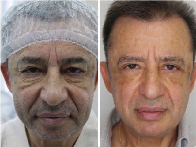 8 мужчин, которым очень помогла пластическая хирургия