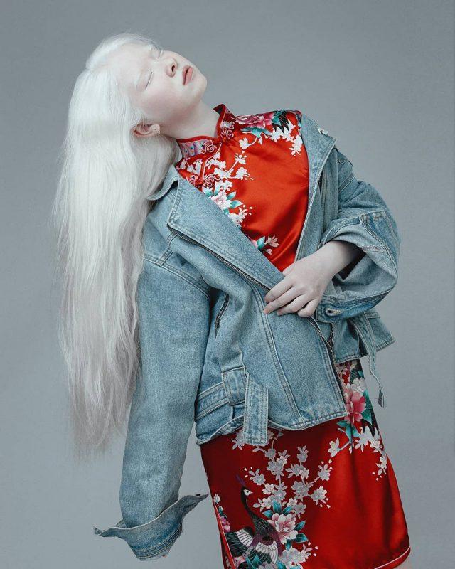 В казахской семье родились необычные девочки-альбиносы. Как сложилась судьба девочек спустя годы