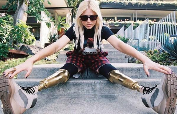 Вот почему эту девушку называют моделью с «золотыми ногами»