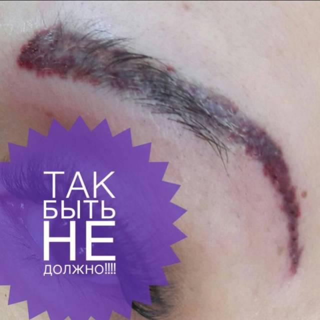 «Жертвы дешевой красоты» 12 людей, которые решили сэкономить на бьюти-процедурах
