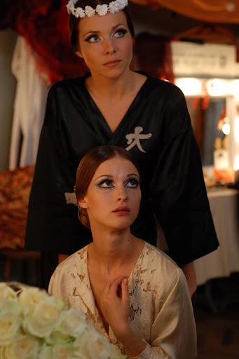 Актрисы, чей изъян во внешности стал настоящей изюминкой