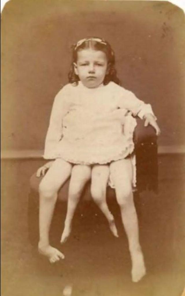 Миртл Корбин - четырехногая девочка из цирка, которая смогла найти свое счастье