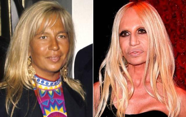 Пластичные лица. Женщины, которые решили полностью перекроить свою внешность