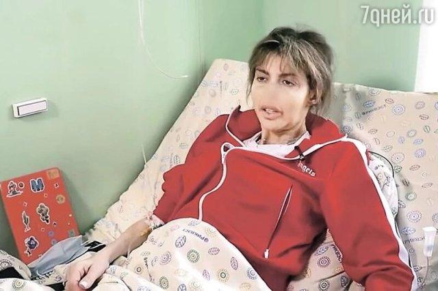 """Вместо носа дыра. Казьмина в небожеском виде показала лицо в """"Прямом эфире"""""""