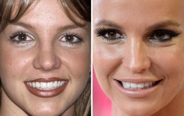 Помятые и морщинистые. Как выглядят лица некогда красивых звезд спустя годы