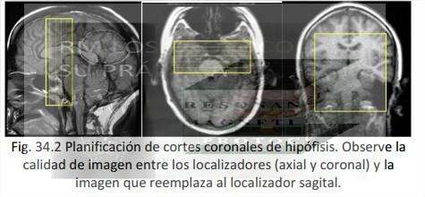 HIPFISIS  Resonancia Magntica los protocolos y su