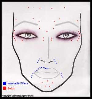 botox | Neuro News & Cosmo Clues