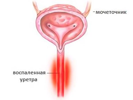 A prosztatitis miatt a vérben való öntözés