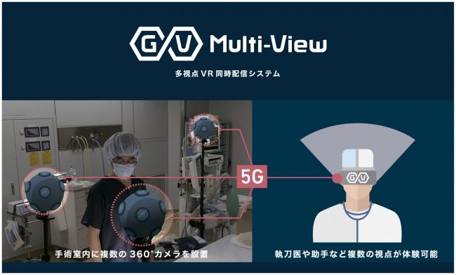 ▲多視点VR同時配信システム「GuruVR Multi-View」※イメージ画像