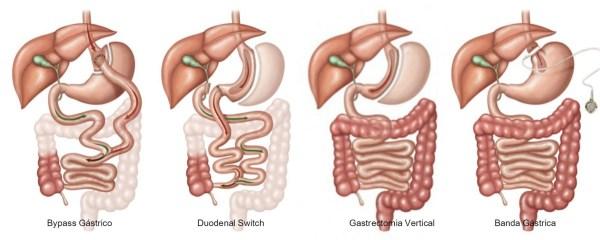 Tipos de cirurgia bariátrica.