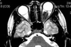 tumor-orbita