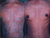 Phototherapy for Psoriasis - Bing images