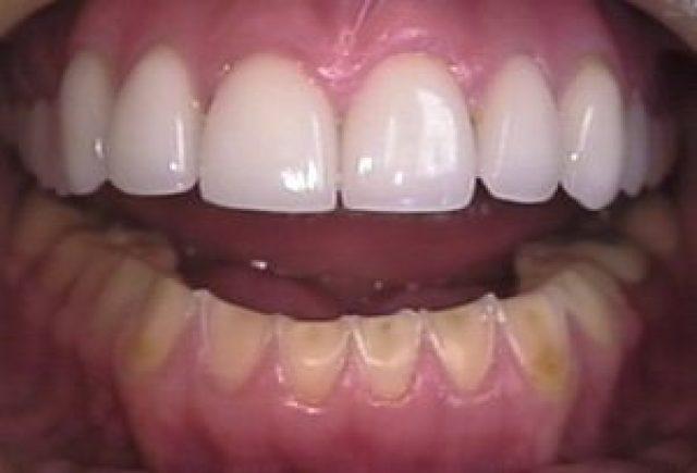 oral_manifestation_of_bulimia