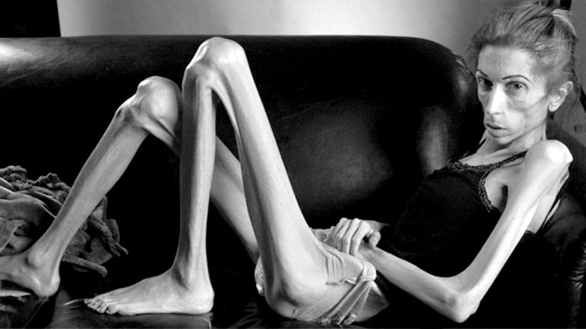 Characteristics Of Anorexia Nervosa – Psychology Blog