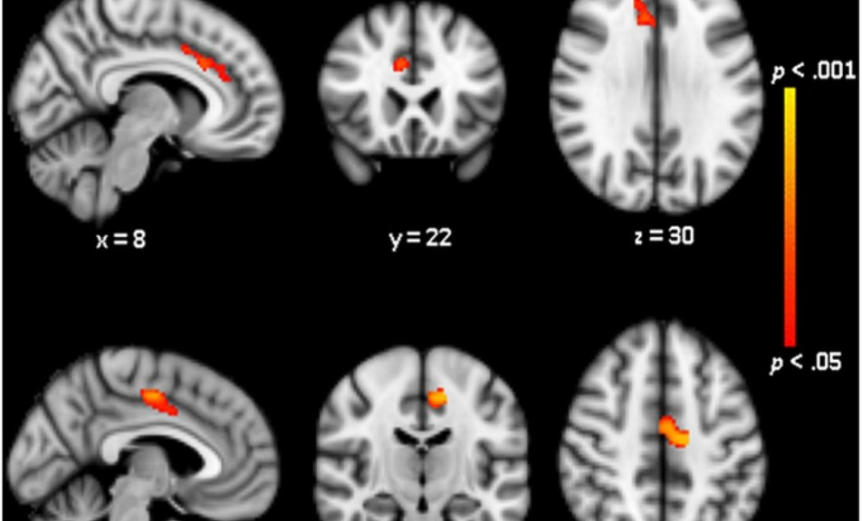 White Matter Integrity is Reduced in Bulimia Nervosa – Psychology Blog