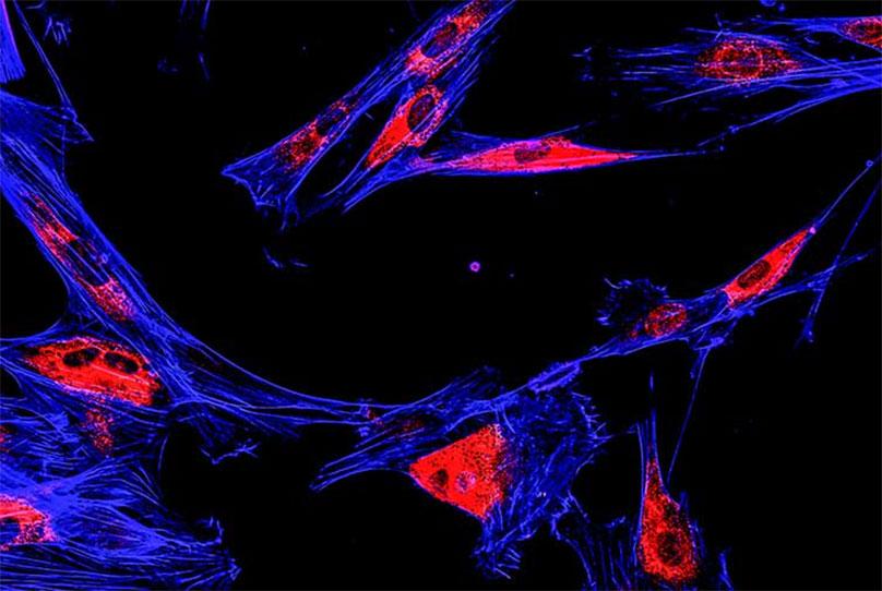 FISH cells