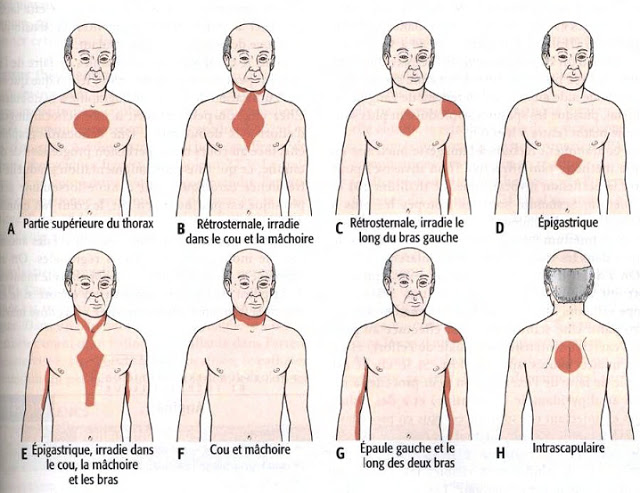 angine de poitrine localisation des douleurs lors de sa survenue