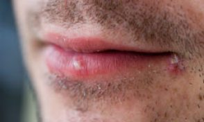 herpes labial causes et traitements conseils sur psychologie-sante.tn