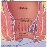 HÉMORROÏDES : causes, symptomes et traitement 3