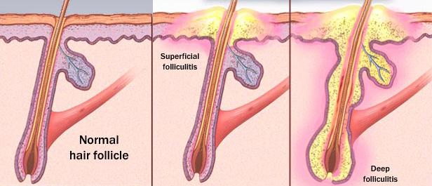 Comment traiter un follicule pileux gonflé ? 1