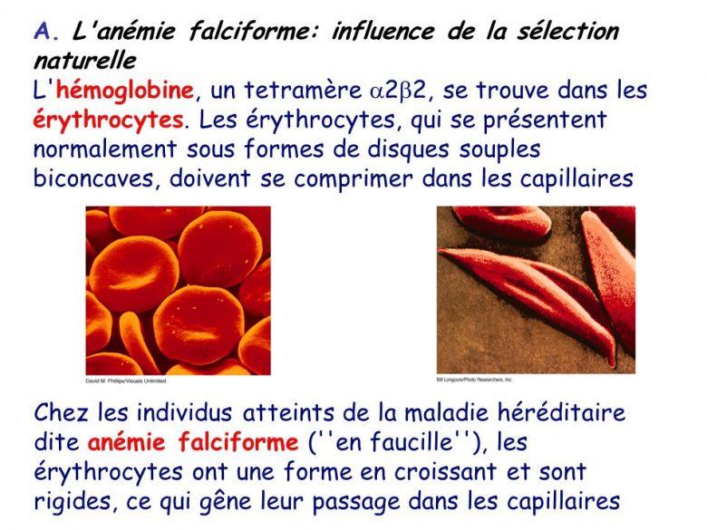 L'anémie falciforme : Définition et traitements 1