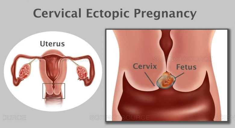 Qu'est-ce qu'une grossesse cervicale ? 1