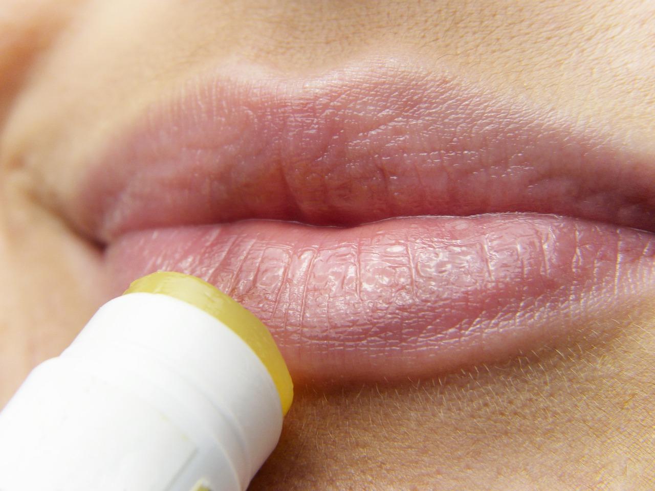 L'herpès labial, causes et conseils pour l'éviter 1
